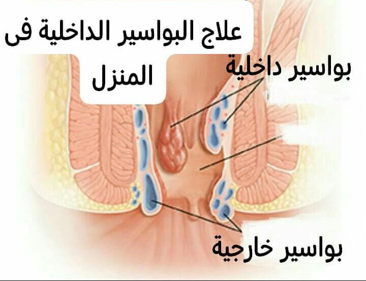 علاج البواسير بالاعشاب