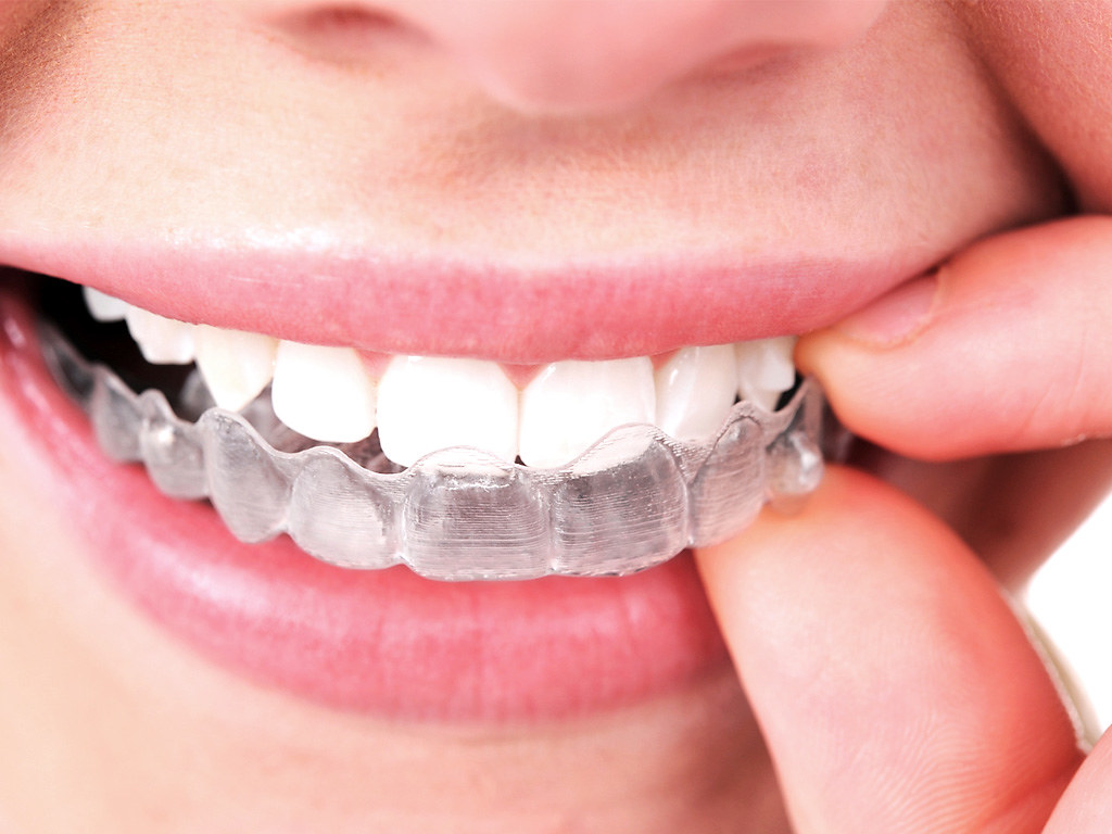 Looking for a Discreet Way to Straighten your Smile?