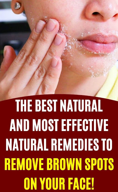 The Best Natural And Most Effective Natural Remedies To Remove Brown Spots On Your Face