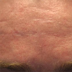 How To Remove Hyperpigmentation At Home