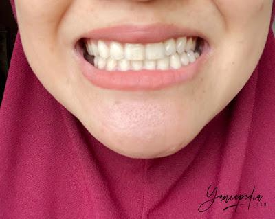 senyuman zenyum