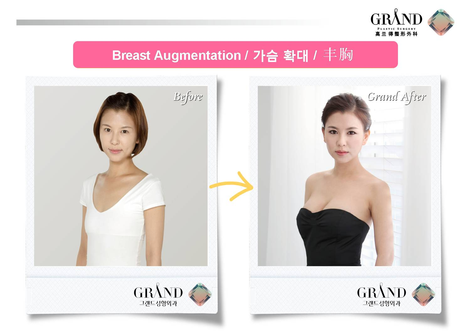 22bb09d9e4 Plastic Surgery Korea - Before   After TEAR DROP BREAST AUGMENTATION