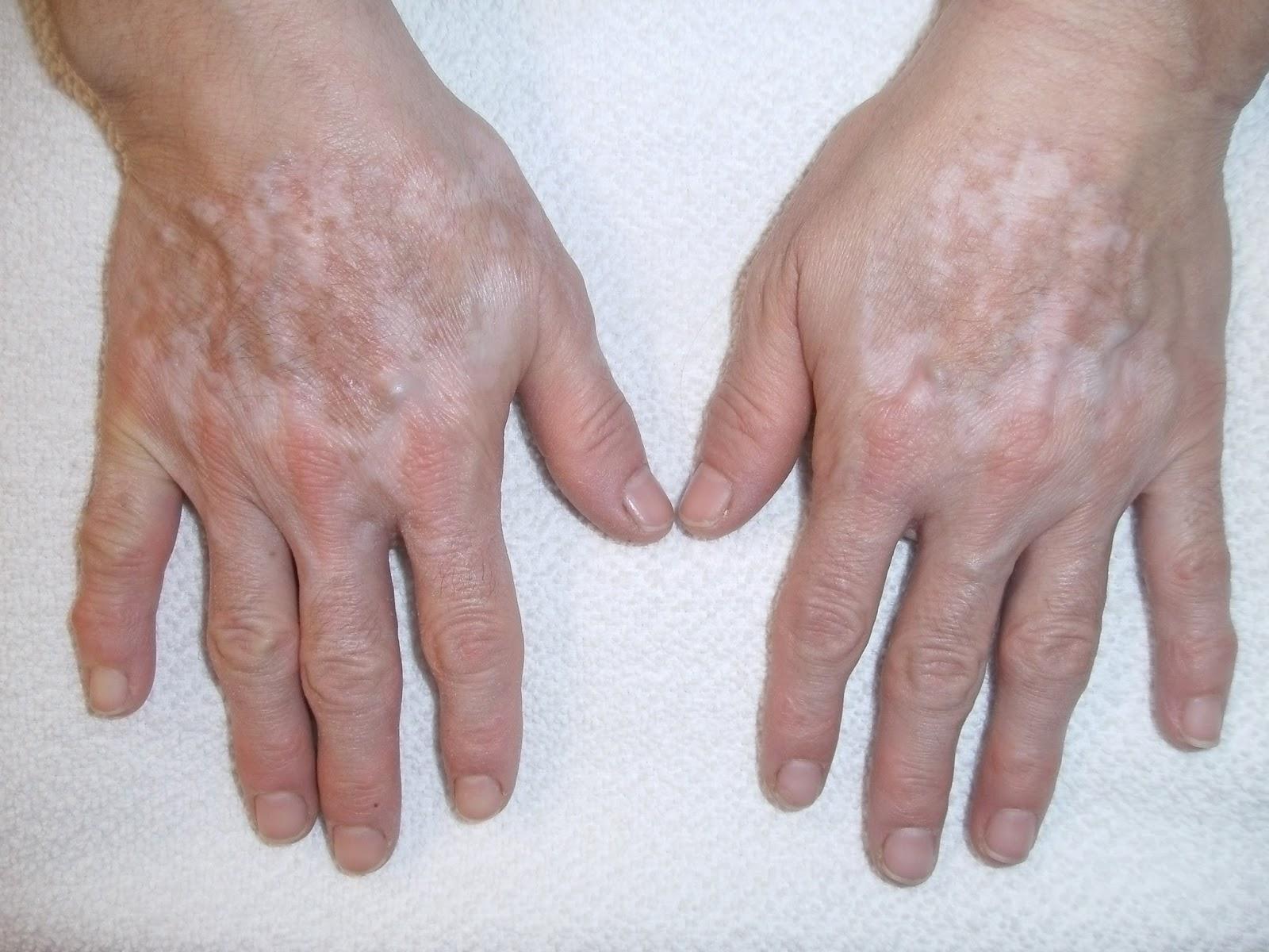 Methotrexate and infliximab rheumatoid arthritis