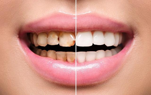 restore smile dental restoration fix grin dentist