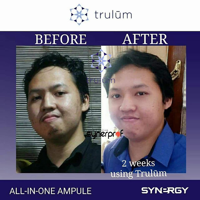 Jual Trulum Serum Anti Aging Di Parengan Tuban