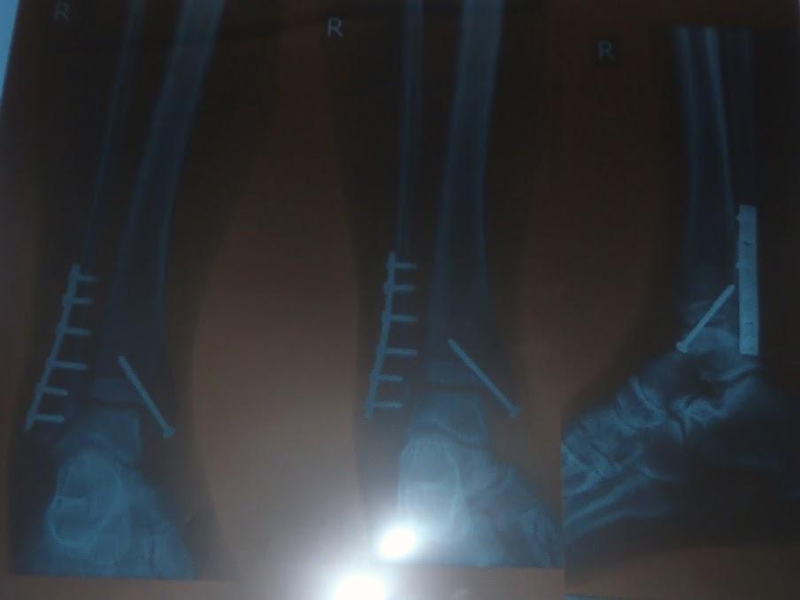 Broken Ankle Xray