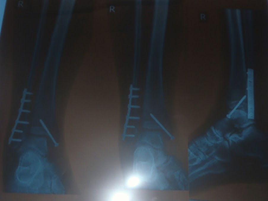 Broken Ankle Xray