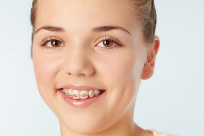 Phương pháp khắc phục răng hô