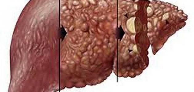 أعراض تطور سرطان الكبد وكيفية المحافظة على الكبد