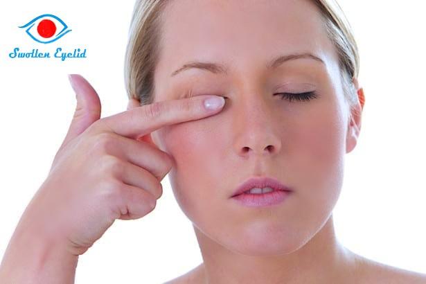 swollen-eyelids-after-pregnancy
