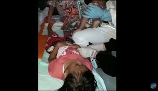 Sepi Pemberitaan, Anak Balita Jadi Korban Tembakan Gas Air Mata