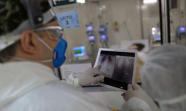 Covid-19: Brasil tem 28.645 diagnósticos e 1.319 mortes em 24 horas