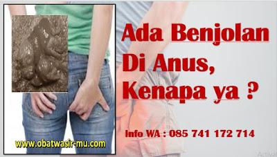 Jual Ambejoss (Obat Wasir Tanpa Operasi) Di Makassar. WA 082326813507