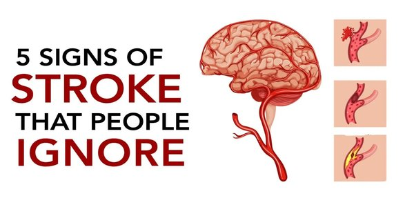 5 Signs of Stroke