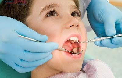TOP 3 lợi ích của niềng răng có thể bạn chưa biết