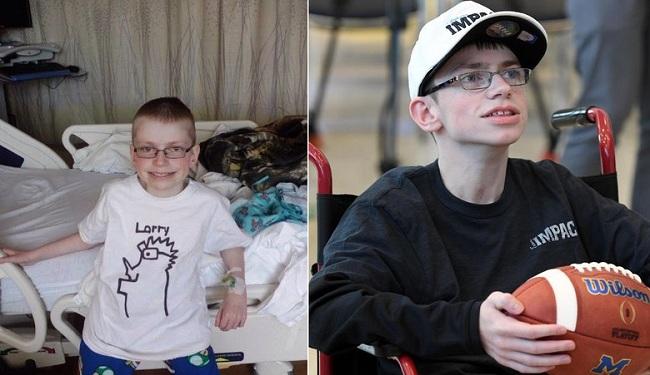 Γεννημένος με ένα σορό προβλήματα και σχεδόν όλα τα όργανα έξω, γιόρτασε τα 17α γενέθλιά του!