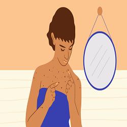 Câncer da pele: pintas que mudam de cor, tamanho e formato são alerta