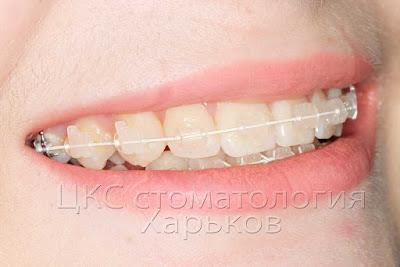 Эстетическая система мало заметна на зубах.