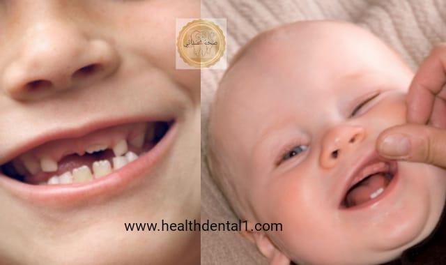 موعد ظهور اسنان الاطفال اللبنية