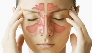 Terapi Sinusitis, Terapi Penyakit Sinusitis,Terapi Tradisional Sinusitis