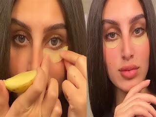كيفية علاج انتفاخ العينين