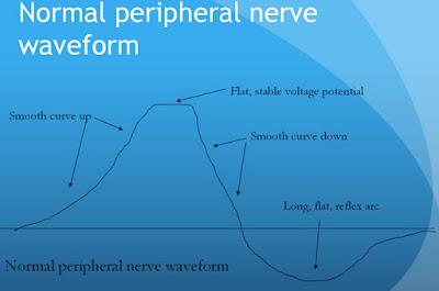 forma de onda normal