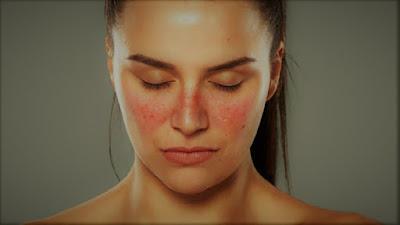 Mengenal Apa Itu Penyakit Lupus dan Benarkah Tidak Bisa Disembuhkan