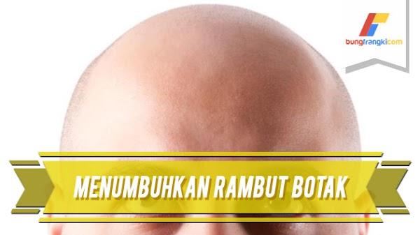 8 Cara Alami Menumbuhkan Rambut Botak