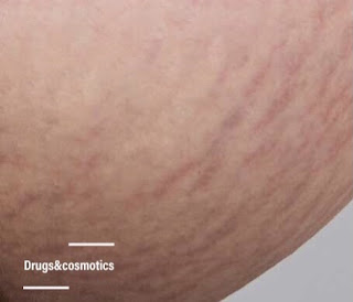 علامات تمدد الجلد , علامات تمدد الجلد الحمراء , علامات تمدد الجلد البيضاء , علامات تمدد الجلد عند الحوامل , علامات تمدد الجلد عند المدخنين