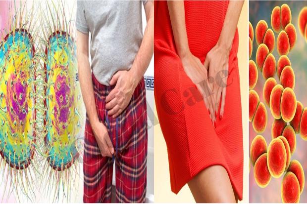 Gonorrhoea Symptoms Nhs Steemit