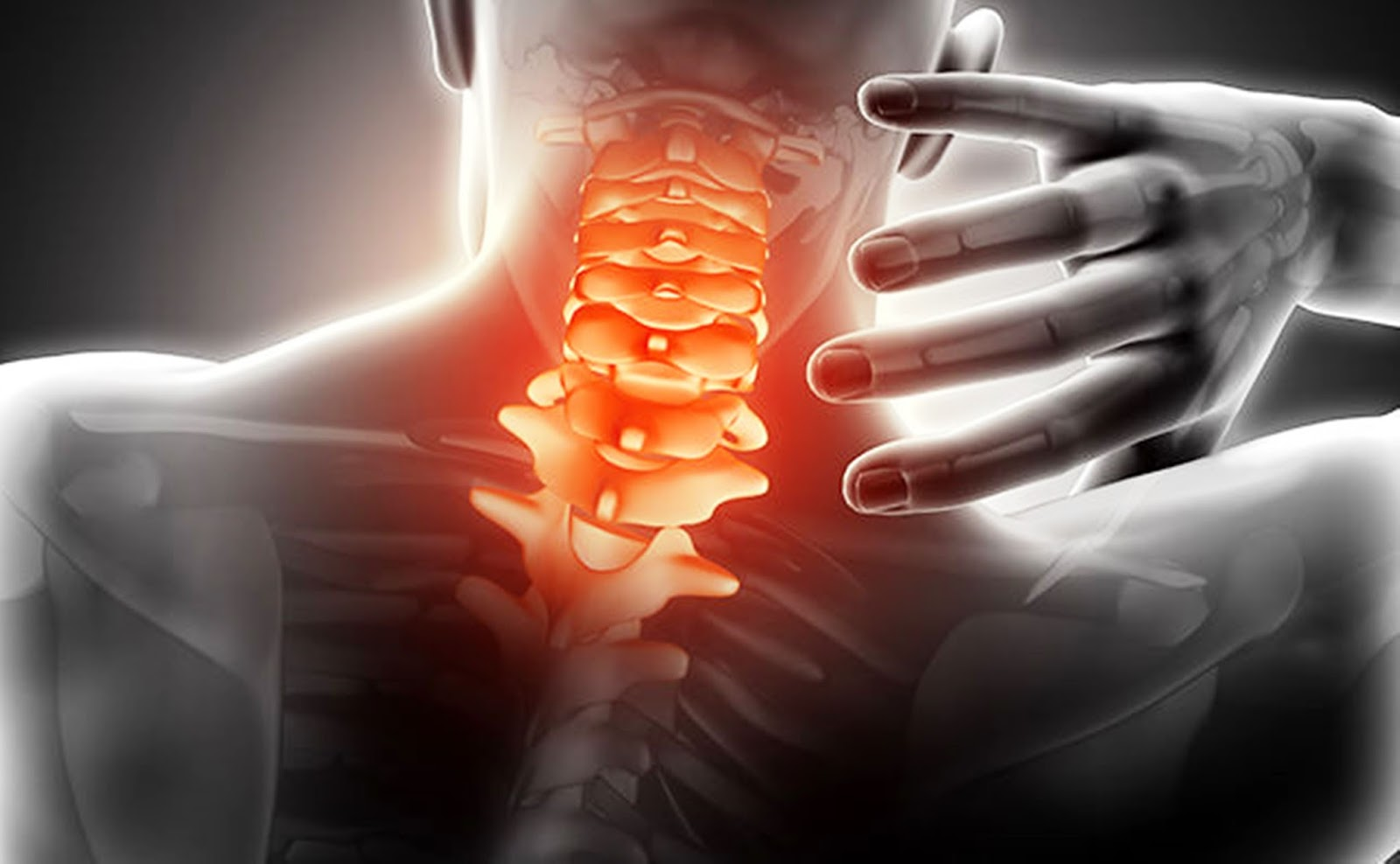 EMS SOLUTIONS INTERNATIONAL marca registrada: Sindrome de Latigazo ...