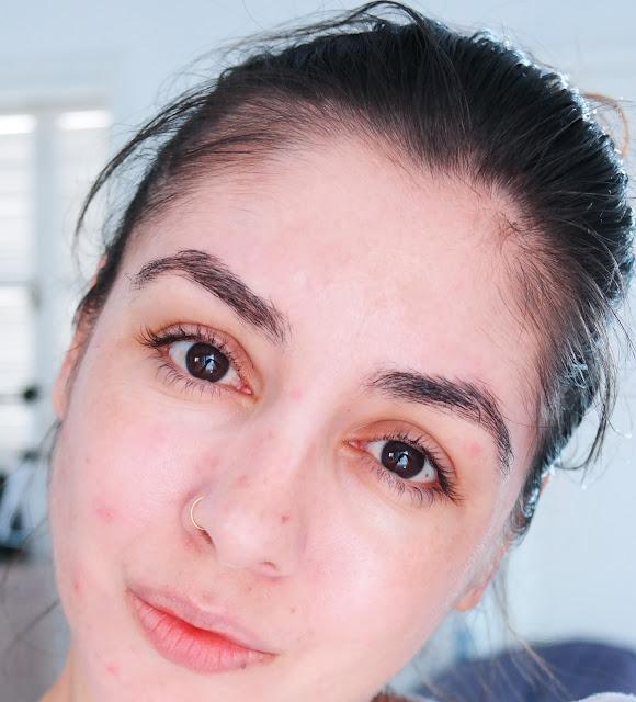 pele, espinhas, cravos, acne adulta, secativo de espinhas, ácido glicólico, sabonete de enxofre, limpeza de pele, bicarbonato de sódio, argila verde, pele inflamada