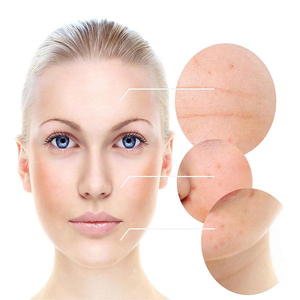 type Skin baumann