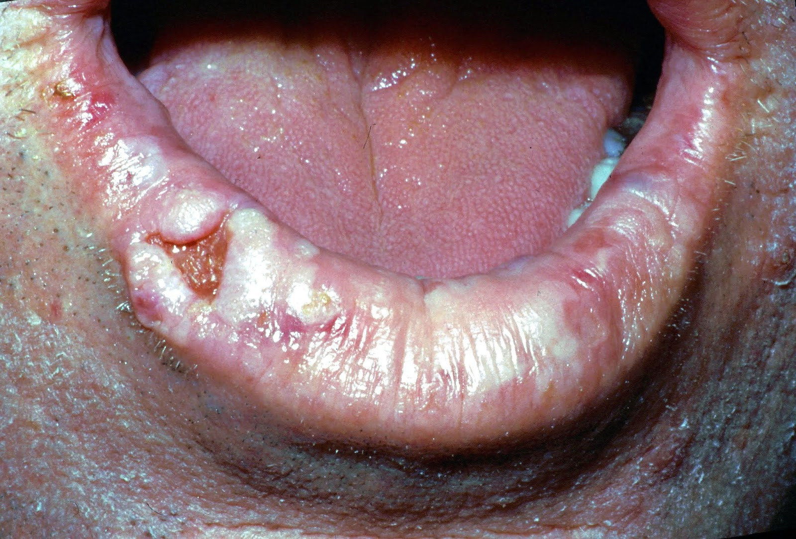 lip-cancer-symptoms-causes