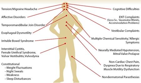 7 Common Types Of Fibromyalgia Pain