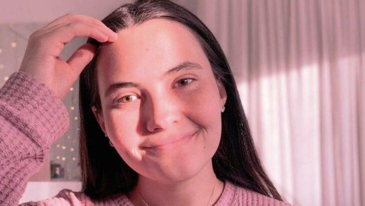 La increíble historia de la chica que es alérgica al agua y hasta sus lágrimas le causan urticaria