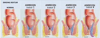 obat wasir ampuh untuk ibu hamil di apotik terdekat