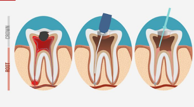 ¿Cuándo hace falta un tratamiento de Endodoncia?