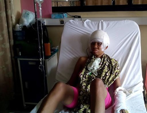 OMG!! Female Corper who survived tragic accident shares shocking photos
