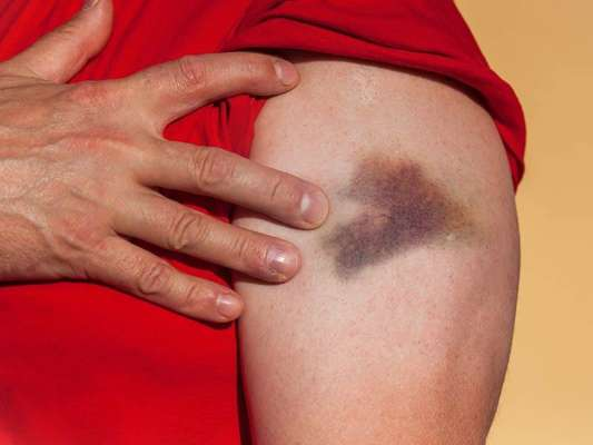 These home remedies will clear the old bruises in a few weeks Funny Jokes