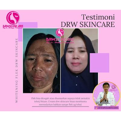 Testimoni paket flek hitam Drw skincare