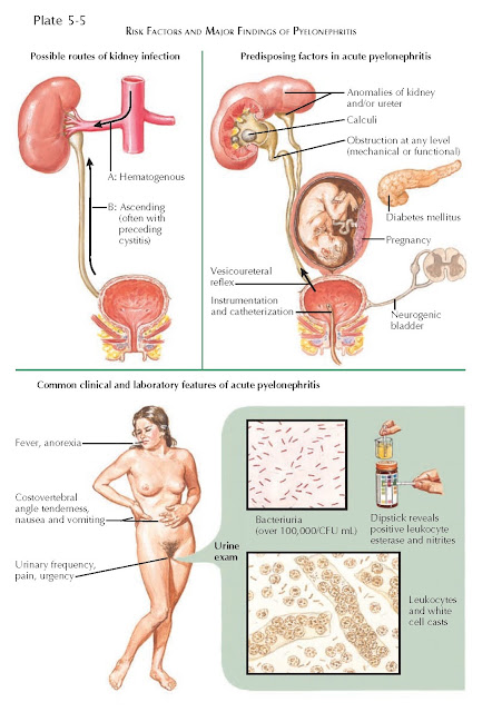 RISK FACTORS AND MAJOR FINDINGS OF PYELONEPHRITIS