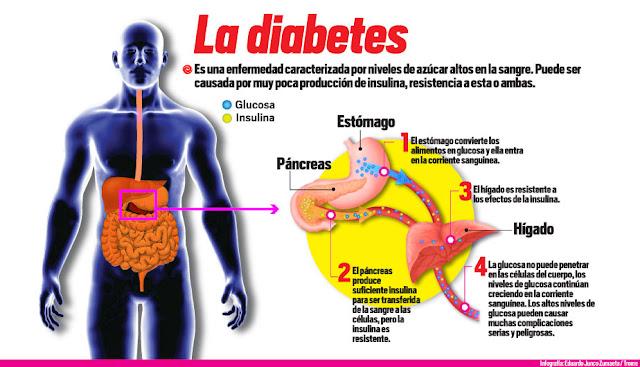 DIABETES - PROCESO