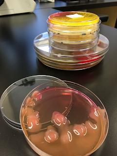 http://www.journaldemontreal.com/2017/04/06/la-lutte-aux-bacteries-resistantes-aux-antibiotiques-sorganise
