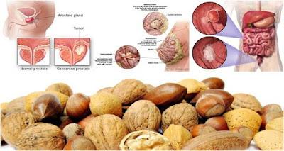 Comer estos frutos secos cada día reduce el riesgo de cáncer mama, colon y próstata, estudios lo demuestran