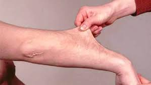Ehlers-Danlos syndrome causes