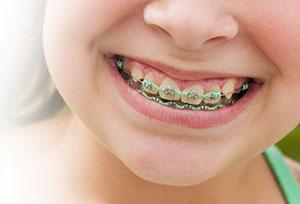 Clínica dental: tratamientos