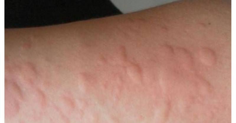 前 蕁 麻疹 生理