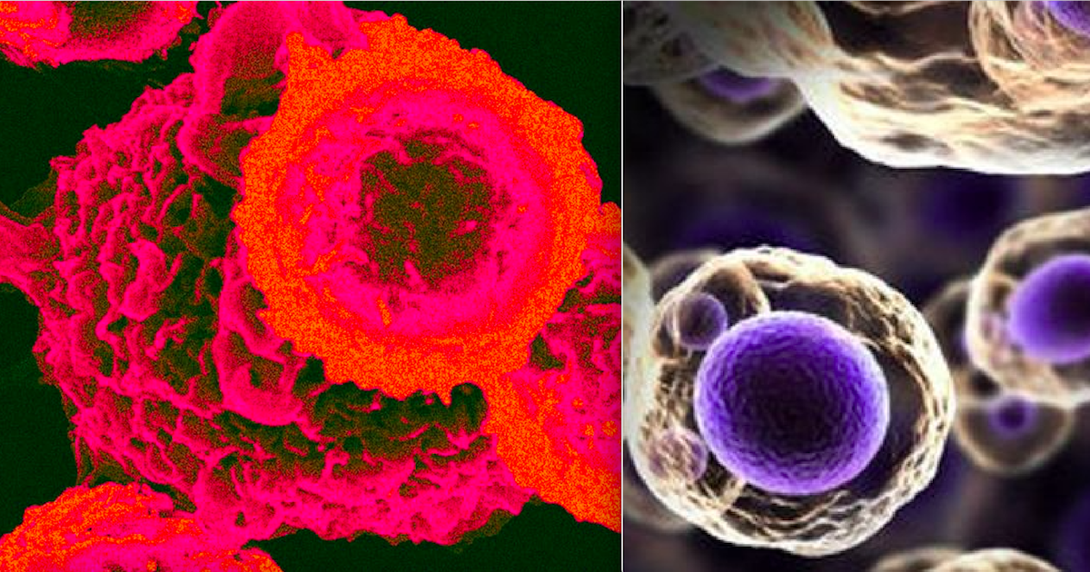 New Research Suggests That All Cancers Are Linked To A Single Protein