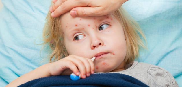 الـحـصـبـة  Measles